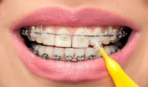 Cleaning Your Teeth While Wearing Braces
