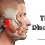 Your Complete Guide For TMJ Disorder!