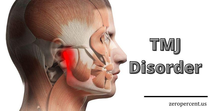 TMJ Disorder