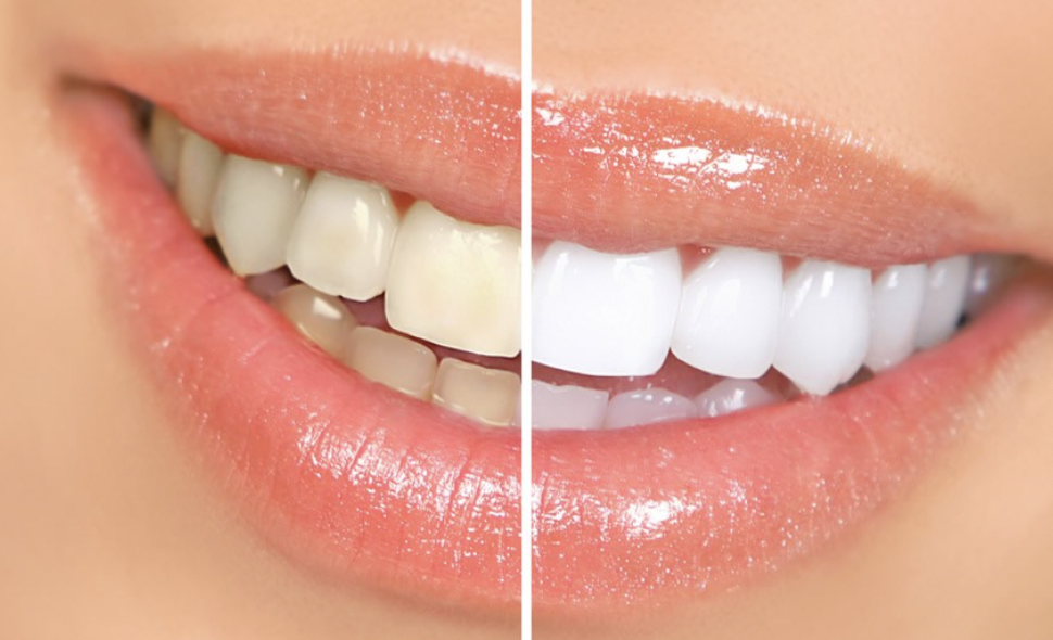 Veneers is the next big thing for Yellowed or Stained Teeth